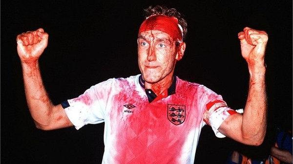 Terry Butcher: l'immagine di guerriero sanguinante in Svezia-Inghilterra